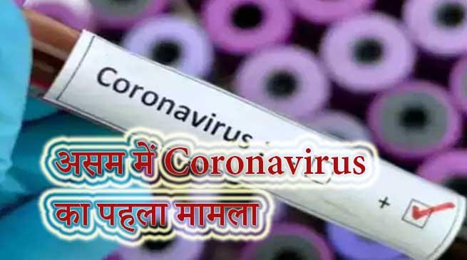 असम के जोरहट में Coronavirus का पहला मामला आया सामने